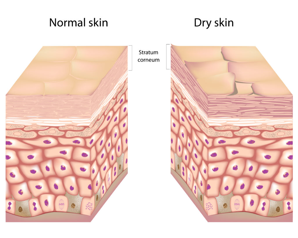 How to Combat Dry Skin in the Winter with Rodan + Fields | Normal skin vs. Dry Skin