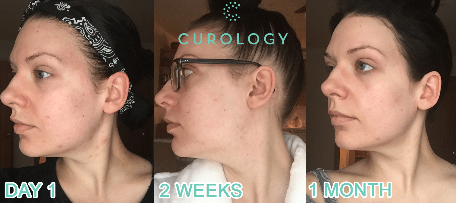 Curology Review | Before & After Photos (Day 1, 2 Weeks, & 1 Month)