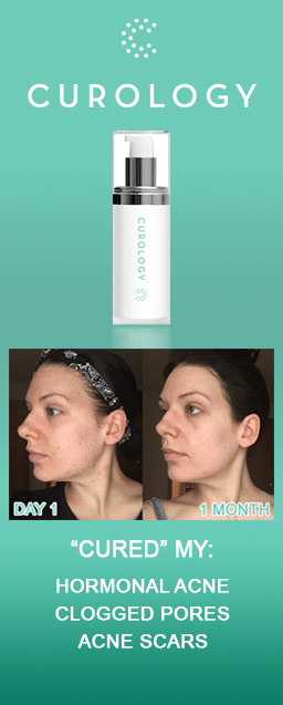 Curology Review Before & After Photos