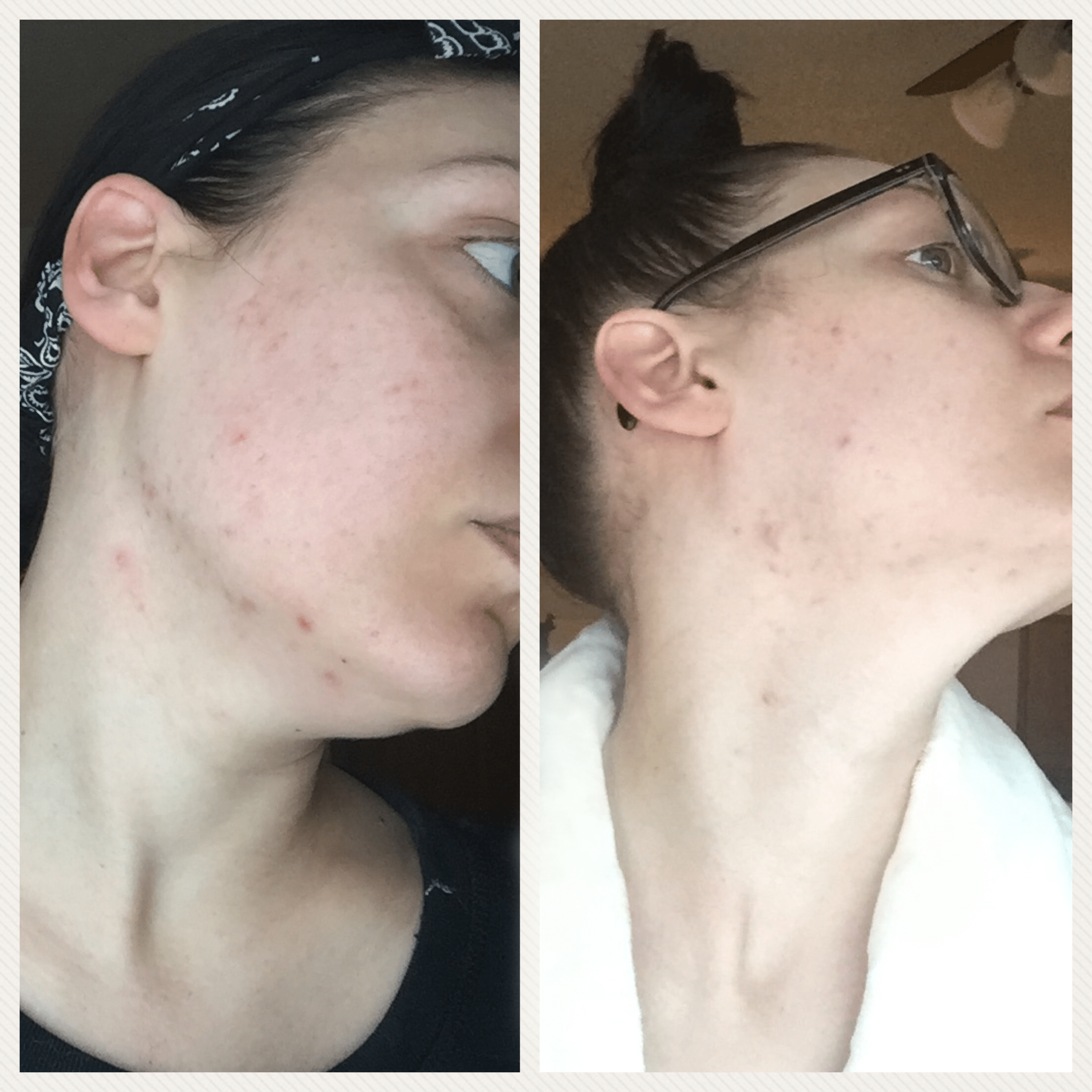 Is Curology the Cure for your Skin? | Curology Before & After 2 Weeks