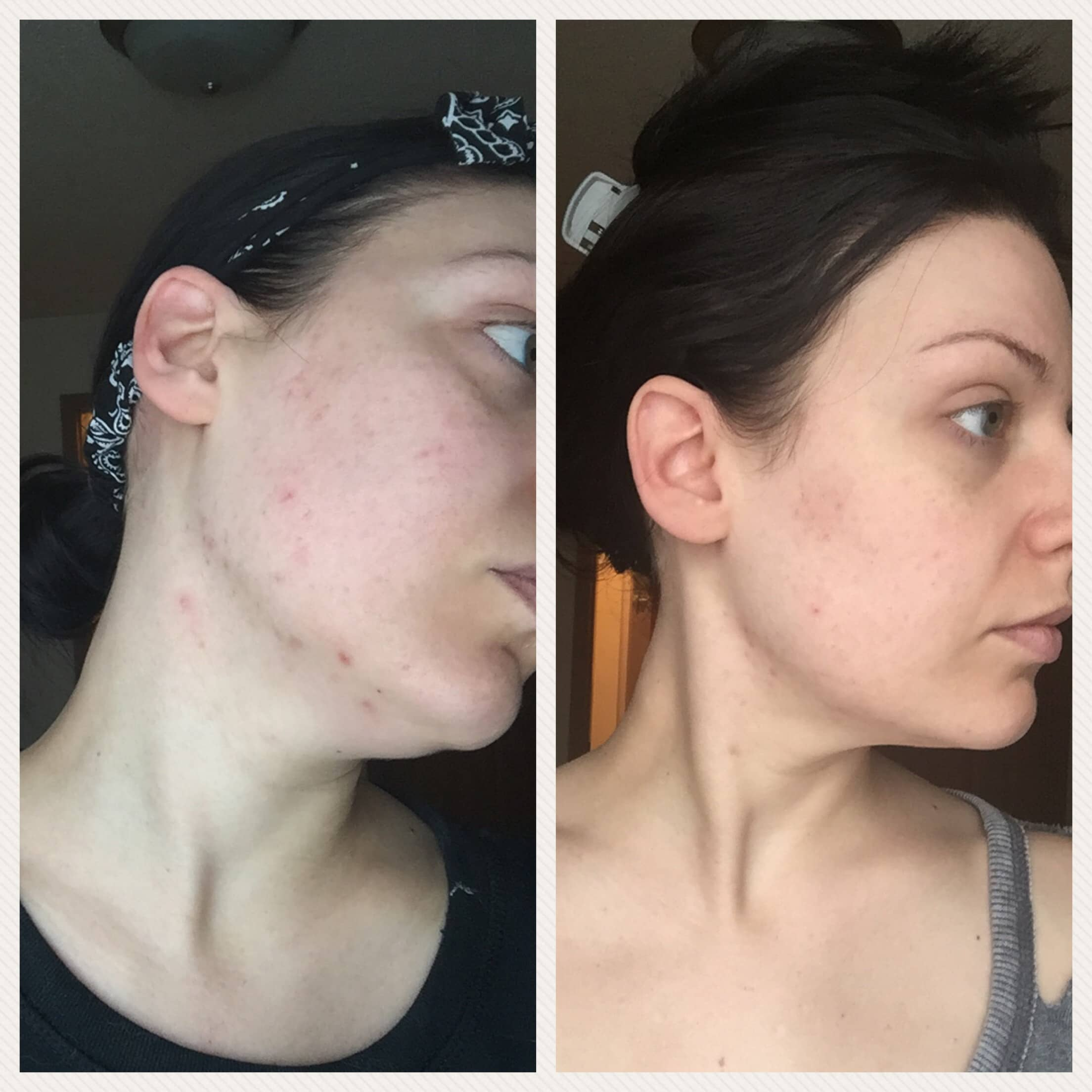 Is Curology the Cure for your Skin? | Curology Before & After 1 Month