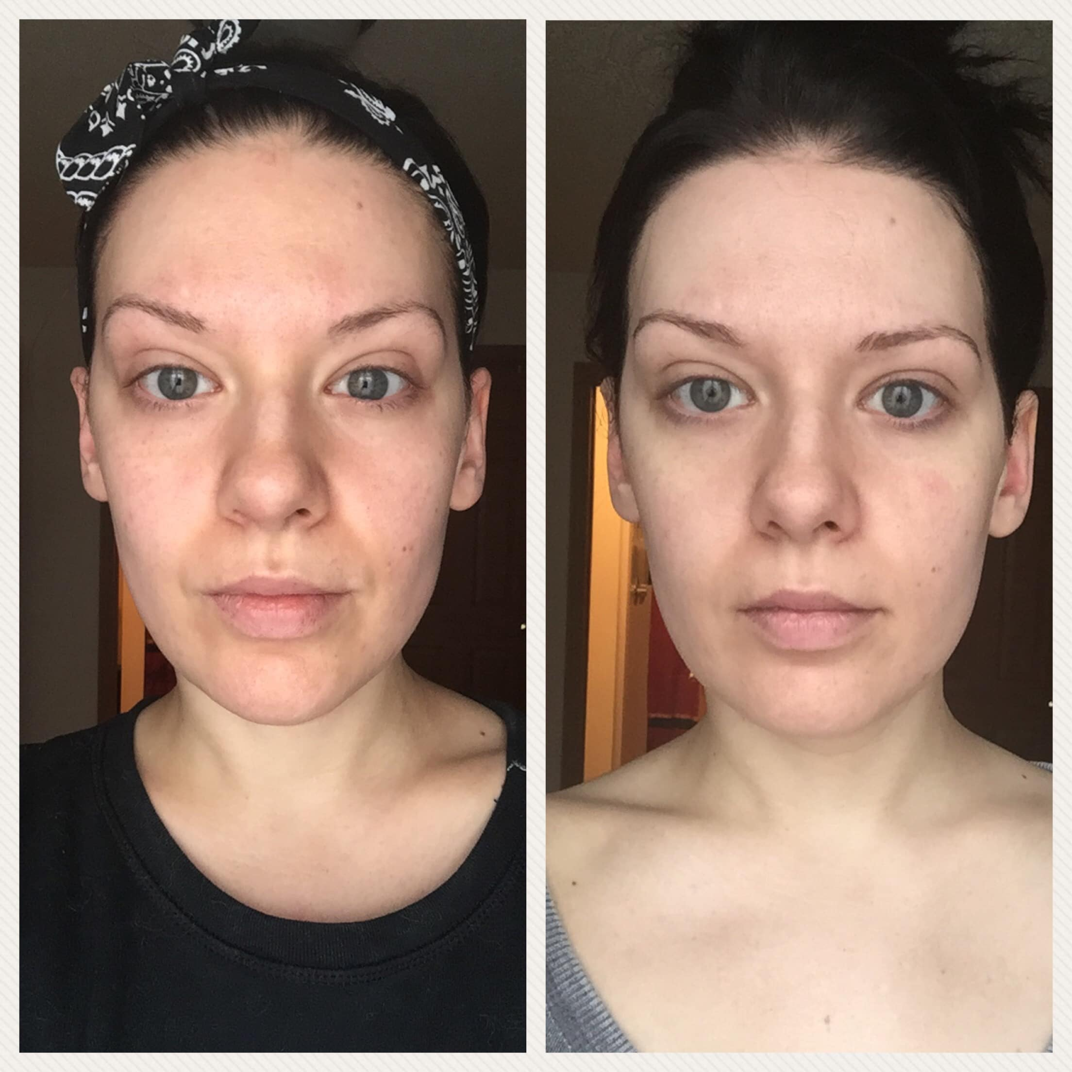Is Curology the Cure for your Skin?   Curology Before & After 1 Month